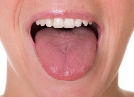 Matai nedidelę burnos žaizdelę? Neignoruok jos