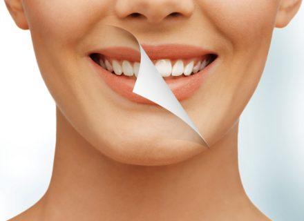 Odontolodė atskleidė, kurie 5 maisto produktai labiausiai kenkia burnos gleivinei