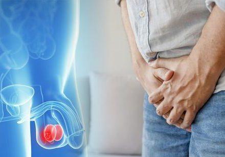 Kuo vyrai ilgiau dels, tuo šios ligos gydymas taps sudėtingesnis