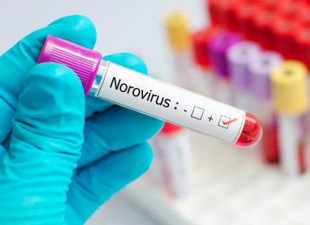 Adenovirusinė, norovirusinė ir rotavirusinė infekcijos