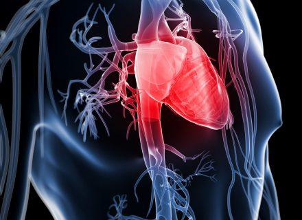 Kas daroma ir ko trūksta, kad širdies ir kraujagyslių ligos trauktųsi?