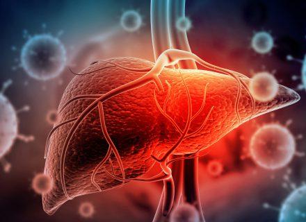 Gydome alkoholinį hepatitą: kaip priimti tinkamiausią sprendimą?