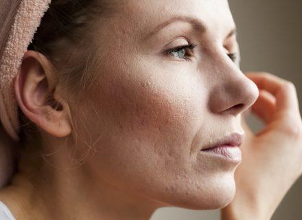 Ką daryti (ir ko nedaryti) kovojant su akne?