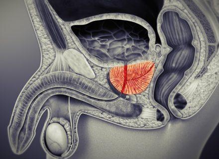 Trys dažniausios prostatos ligos