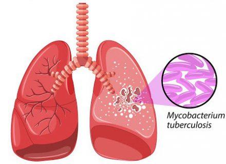 Tuberkuliozė – potencialus pavojus ir sergančiajam, ir jį supantiems aplinkiniams