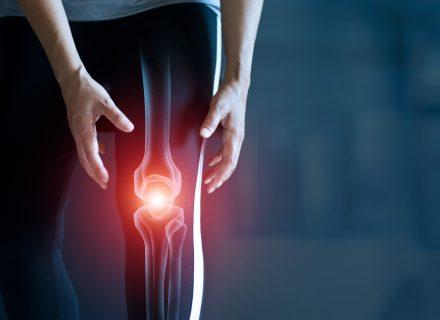 Osteoartito diagnostika ir gydymas