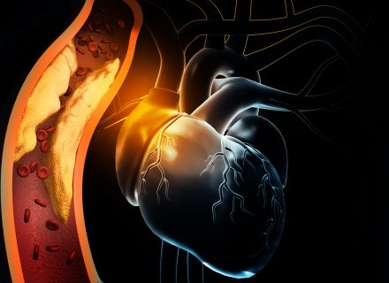 Miokardo infarkto be ST segmento pakilimo diagnostika ir gydymas