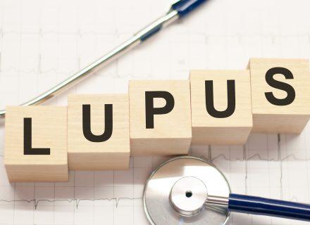 Vilkligės glomerulonefritas (Lupus nefritas)